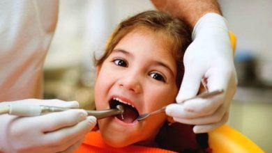 Photo of La lutte contre la carie dentaire n'est pas gagnée en Montérégie